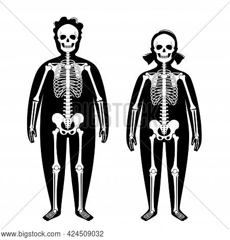 Skeleton System Human Bones Concept. X Ray With Overweight Boy And Girl Silhouette. Skull, Arms, Leg