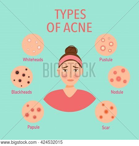 Types Of Acne On The Skin Infographic In Flat Design. Worry Woman On Pimple Skin Problem.