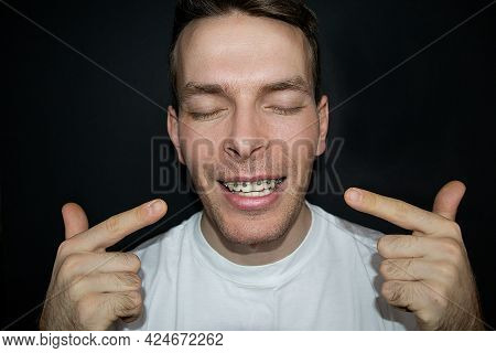 Portrait Of A Smiling Man With Closed Eyes With Braces On His Teeth. Upper Jaw Braces