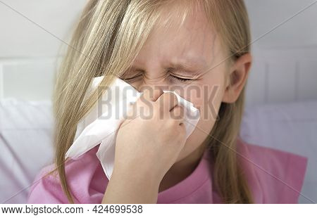 A Small Blonde Girl With Blond Hair, White Skin, European Appearance Blows Her Nose In A White Kerch