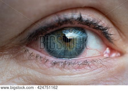 Close Up Of Woman With Irritated Dry Red Eye Or Allergy. Female Suffering From Redness