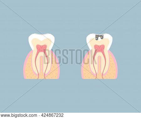 Dental Teeth Care, Internal Organs, Tooth Anatomy, Nervous System, Periodontal, Vector Illustration