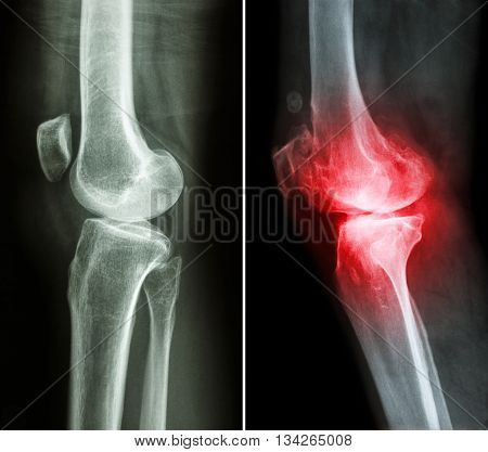 normal knee ( left image ) and osteoarthritis knee ( right image ) ( lateral view )