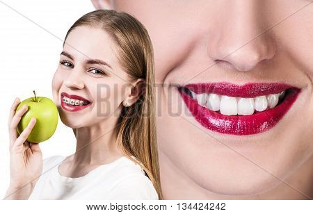 Beautiful young woman with teeth braces holds green apple isolated on white