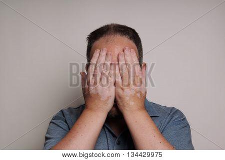 man affected by Vitiligo skin condition hiding his face