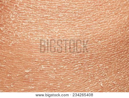 Texture Of The Epidermis Of Human Skin With Flakes And Cracked Particles Closeup