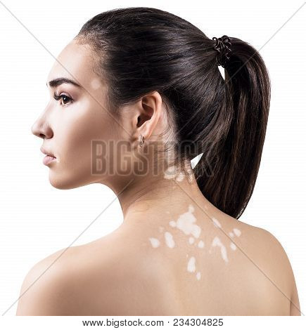 Profile Portrait Of Beautiful Woman With Vitiligo. Isolated On White Background.
