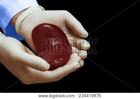 Kidney Transplant Surgery Concept. Real Kidney Is In Hands Of Transplant Surgeon. Cadaver, Donor Kid