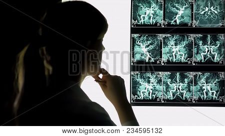 Thoughtful Doctor Looking At Blood Vessels X-ray, Health Care, Neurosurgeon, Stock Footage