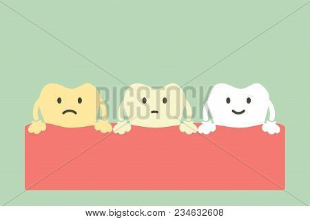 Yellow To White Tooth, Teeth Whitening Concept - Dental Cartoon Vector Flat Style Cute Character For