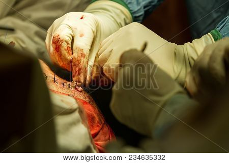 Doctor Sutures A Wound