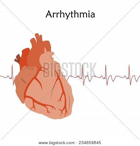 Human Heart. Arrhythmia. Anatomy Flat Illustration. Red Image, White Background. Heartbeat, Pulse.