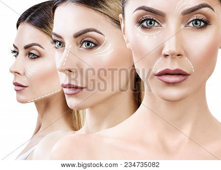 Collage Of Female Face With Dotted Lines On Her Face. Anti-aging Concept. Isolated On White.