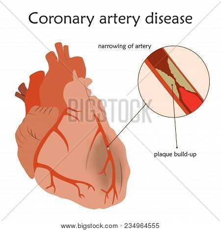 Coronary Artery Disease. Blocked Artery, Damaged Heart Muscle. Anatomy Flat Illustration. Colorful I