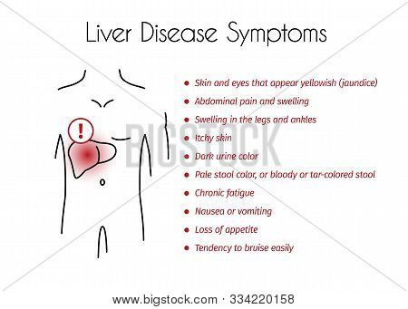 Liver Disease Symptoms Infographic. Vector Linear Illustration Of Young Man With Red Spot On His Liv