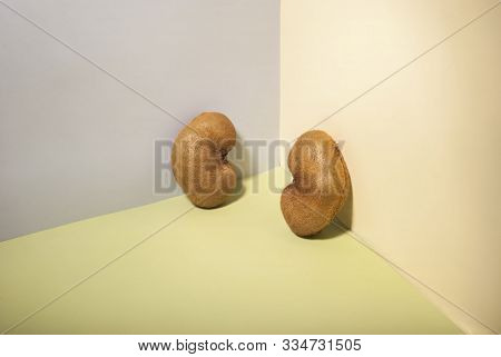 Kiwi Fruits, Similar To The Kidneys. Kidney Health Concept. Promotional Photo Concept Of Kidney Dise