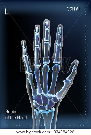Dark Navy Blue Vector Realistic Frontal X Ray Of Skeleton Of Human Hand With Bones Anatomy Of Joints
