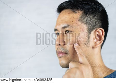 Man Pointing Acne Inflamed Occur On His Face.