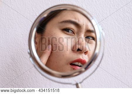 Cropped Shot Of Asian Woman Worry About Her Face When She Saw The Problem Of Acne And Scar By The Mi