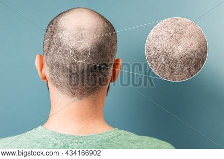 Back View Of Baldness Man. Zoomed Area Of Bald Spot. Rear View. Blue Background. The Concept Of Alop