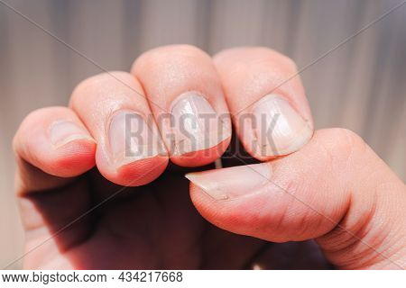 Dirty Nails Can Cause Serious Contagious Diseases, Incomplete Manicure For The Background. Very Dirt