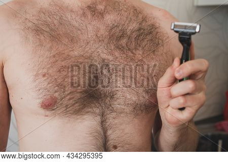 Strong Growth Of Hair On The Body Of A Man. Removal Of Excess Hair From The Body Of A Man. The Probl