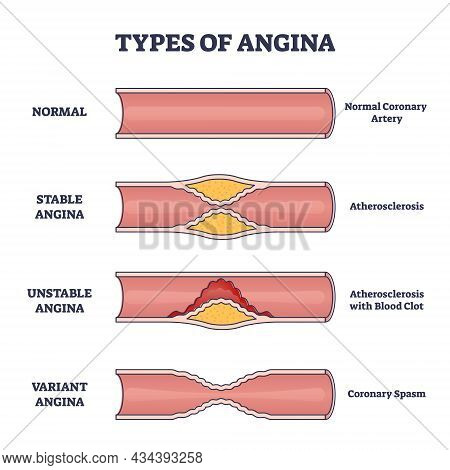 Types Of Angina As Chest Pain And Heart Problem Explanation Outline Diagram. Educational Anatomical