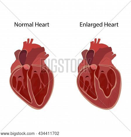 Normal And Enlarged Heart, Cardiomegaly, Inner Inside View. Vector Anatomy Flat Medical Illustration