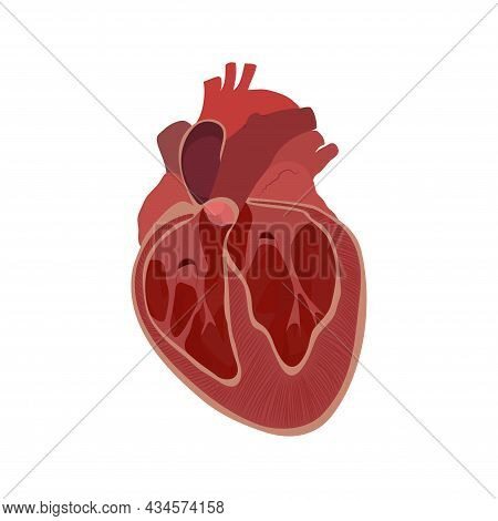 Enlarged Heart, Cardiomegaly, Inner, Inside View. Vector Flat Anatomy Medical Illustration.