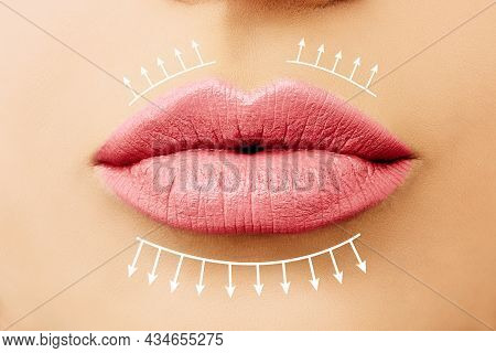 Pink Lips. Female Lips Before And After Lip Filler Injections. Lip Augmentation