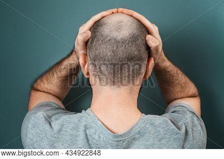 A Person Suffering Because Of His Appearance. Baldy Brunette Man Grabs His Head With His Hands. Back