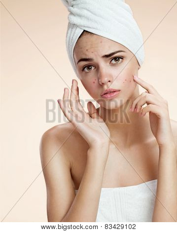 Scowling girl pointing her acne with a towel on her head. Woman skin care concept