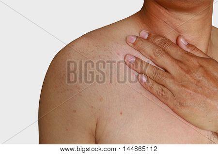 Man with dermatitis problem of rash Allergy rash shoulder area poster