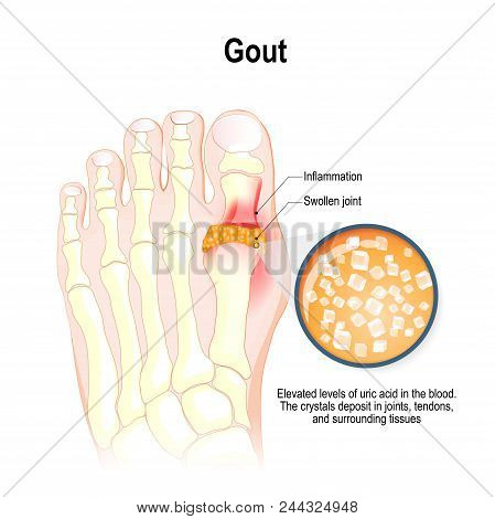 Gout Is A Form Of Inflammatory Arthritis. Characterized By Elevated Levels Of Uric Acid In The Blood