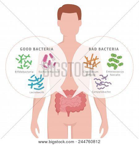 Good Bacteria And Bad Bacteria In Human Intestines. Bifidobacteria, Lactobacilli, Escherichia Coli,
