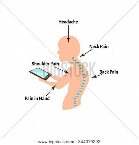 Improper Posture Symptoms. Text Neck Syndrome. Spinal Curvature, Kyphosis, Lordosis, Scoliosis, Arth