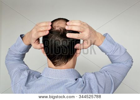 Baldness, Man In Office Shirt Concerned About Hair Loss. Male Head With A Bald, Concept Of Stress At