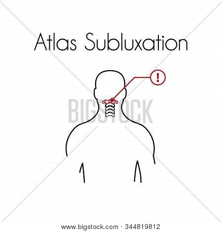 Atlas Subluxation Linear Icon. Vector Minimal Illustration Of Young Man With Red Atlas Vertebra Suff