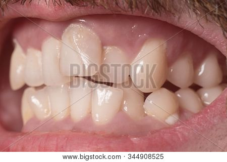 Close-up Of Very Crooked Teeth In An Adult Bearded Guy. Not The Right Bite. Not Healthy Teeth. Viola