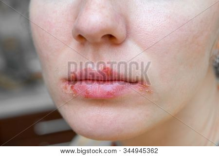 Herpes Virus On The Lips Of Young Woman. Peeling And Remaining Blisters On Skin