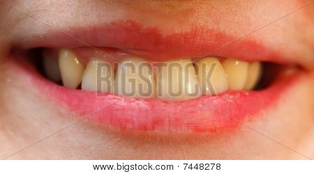 The porcelain crown is ready on the left lateral incisor this crown is made of ceramic with the use of zirconium dioxide (zirconia) poster