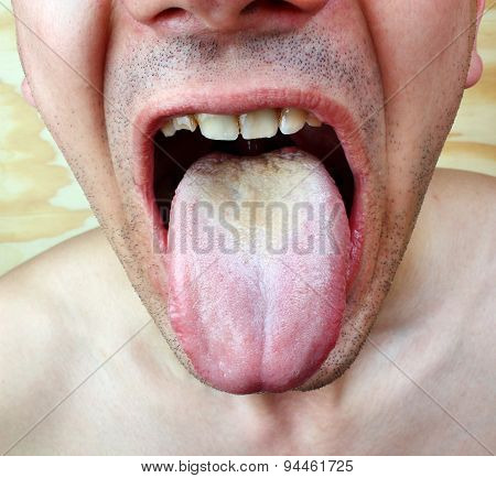 Disease infection  candida tongue throat a man poster