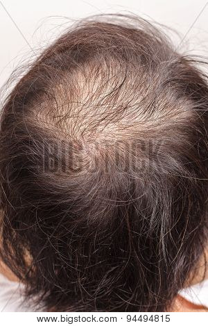 Lose One's Hair Glabrous Baldy Loss