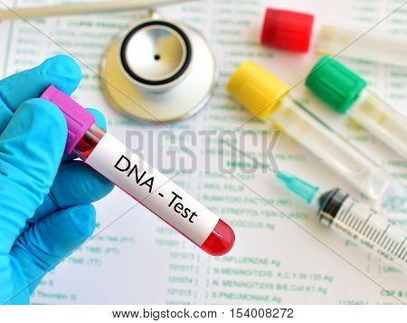 Test tube with blood sample for DNA test