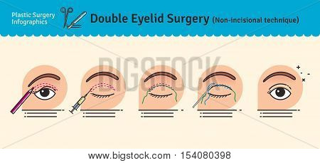 Vector Illustrated set with double eyelid surgery. Non-incisional technique. Infographics with icons of plastic surgery procedures.