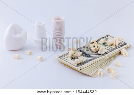 Details of dental implant.The design of dental implant model with pack of dollars and teeth on white background.