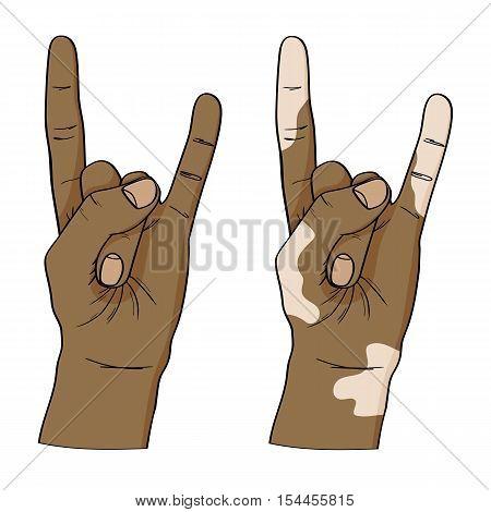 Vitiligo Disease. Vector Woman's Hands Isolated On White Background.