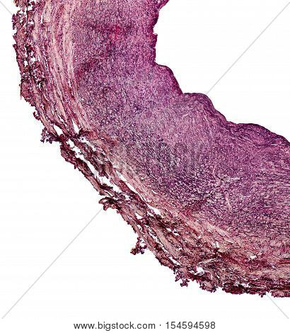 microscopic detail showing a cross section of a human blood vessel