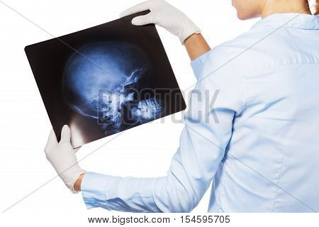 Close shoot over shoulder view of doctor looking at patient's hand and fingers xray