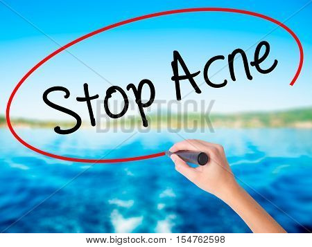 Woman Hand Writing Stop Acne  With A Marker Over Transparent Board.